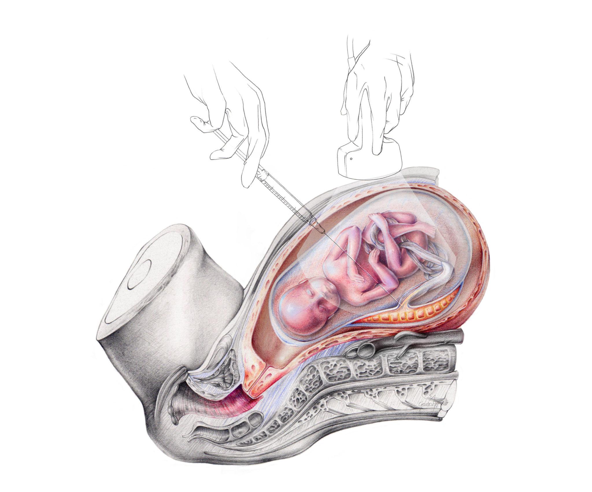 ilustracion Cordocentesis