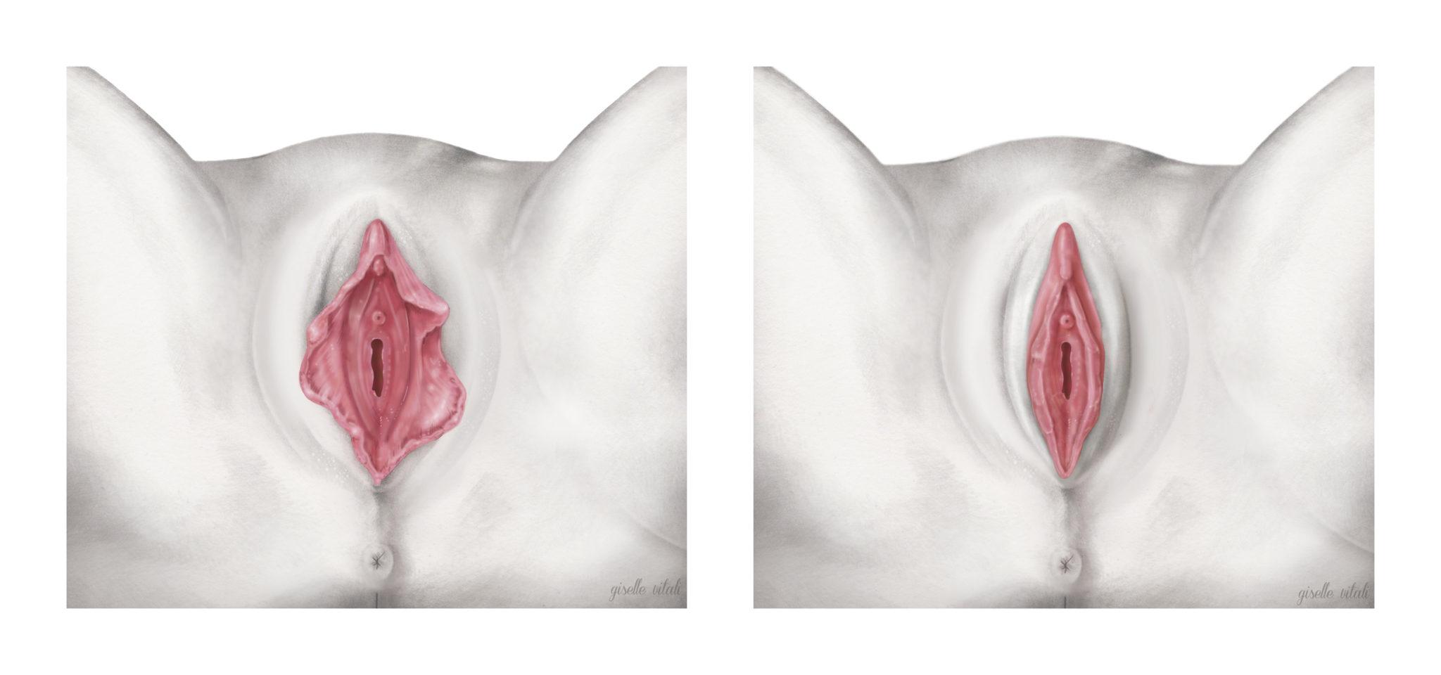 labioplastia ilustracion medica