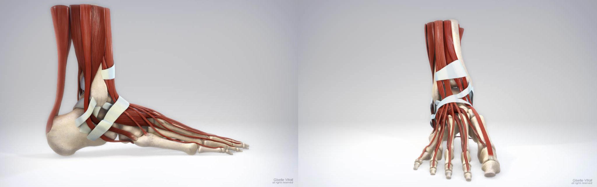 lesiones pie_ giselle vitali 3D