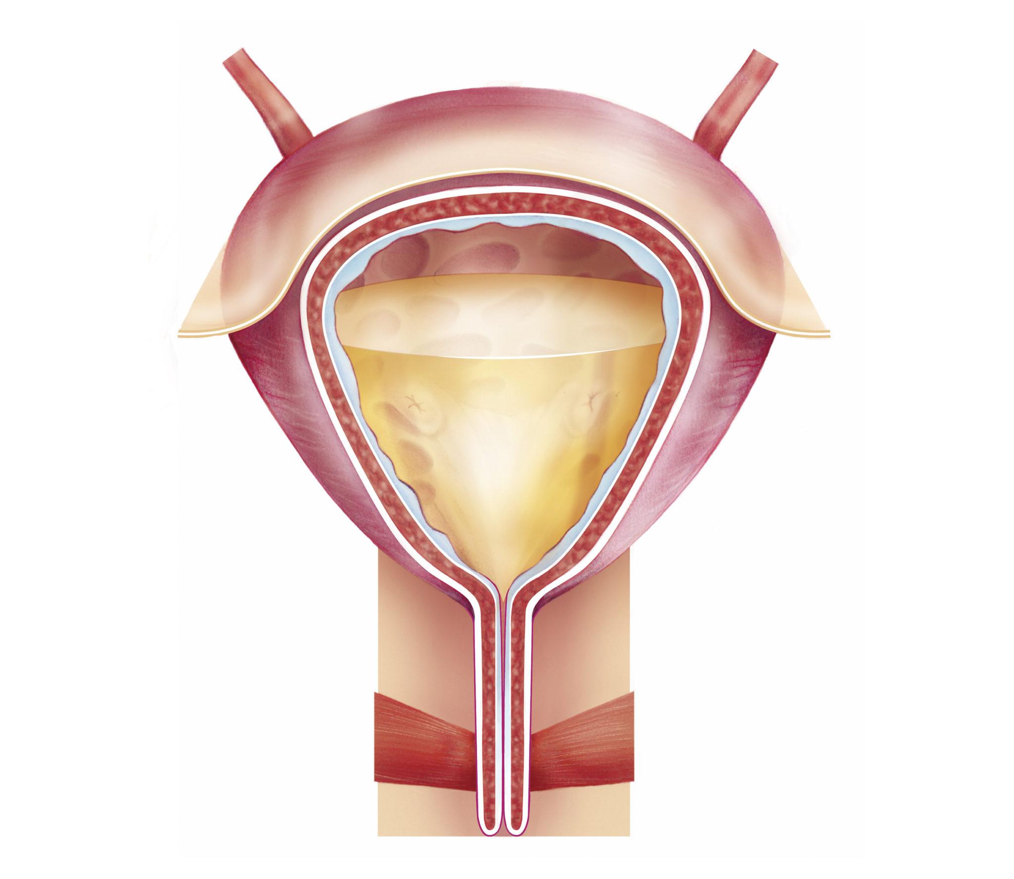 vejiga incontinencia
